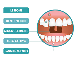 sintomi parodontite dentista vomero