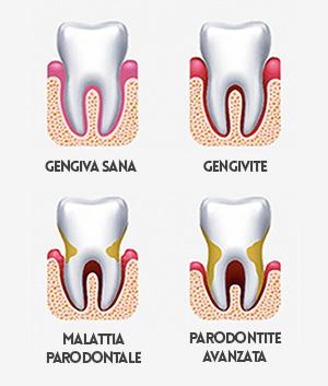 Stadi della parodontite