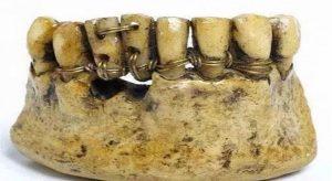 dentiera-antichi-romani