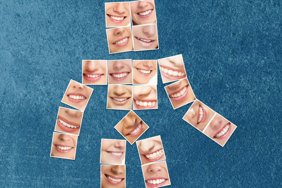 igiene-denti-sani