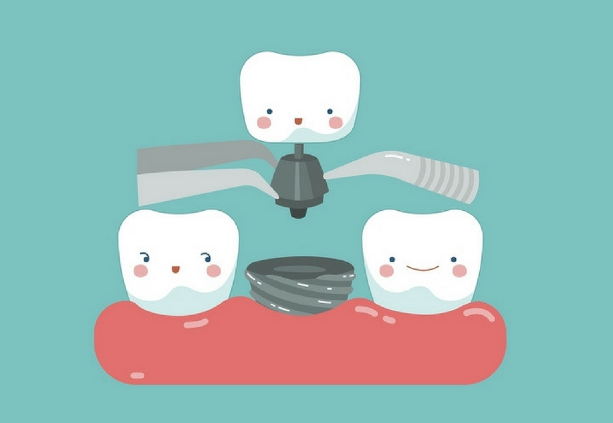implantologia-odontoiatrica-cosa-fa-tuo-sorriso