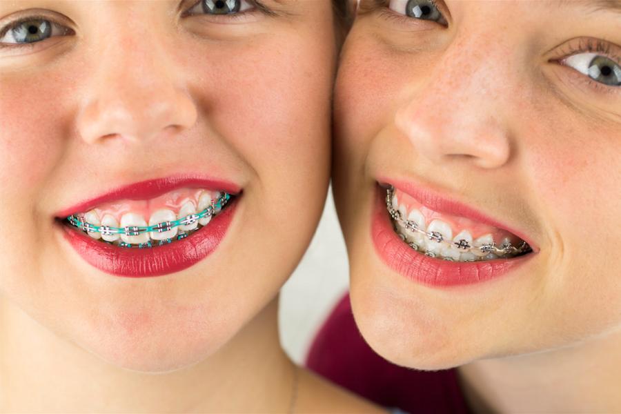 apparecchi-dentali-bambini