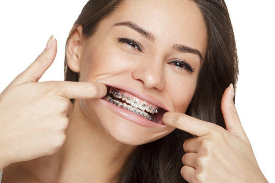 apparecchio-denti-adulti