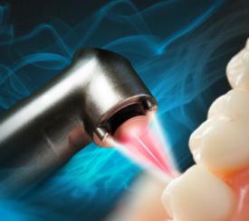 laser-parodontite