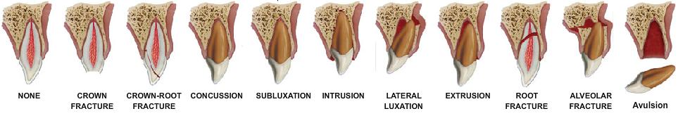 tipi-di-trauma-dentale