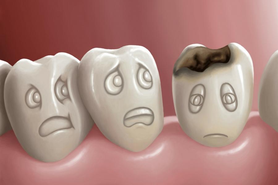 placca-carie-nemici-denti