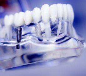 impianto-dentale-come-evitare-errori