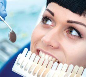 denti-bianchi-anche-sani