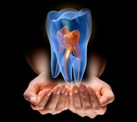 cellule-staminali-denti-contro-parodontite