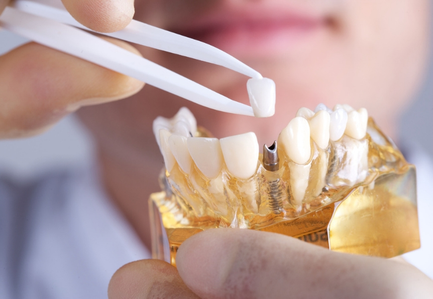 impianti-dentali-anche-svantaggi