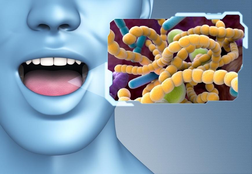 parodontite-e-difese-immunitarie