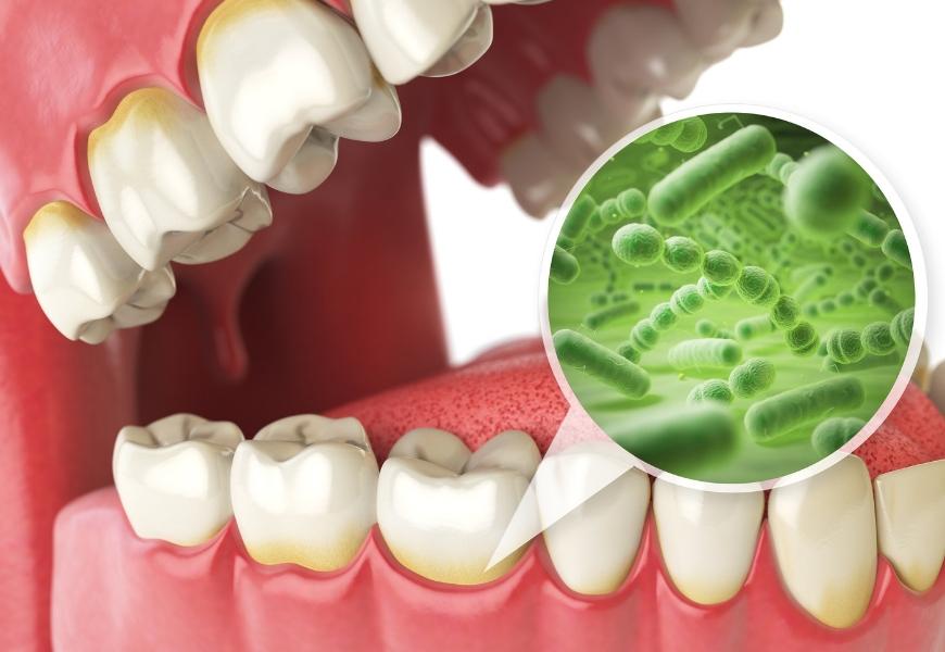 antibioticoresistenza-e-salute-dentale