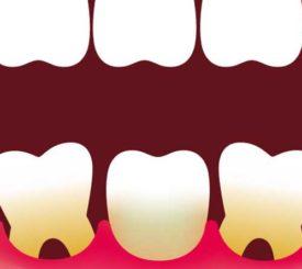 mobilita-dei-denti-segnale-prestare-attenzione