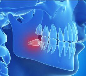 cosa-e-l-inclusione-dentaria