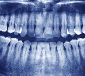 denti-del-giudizio-sono-davvero-inutili