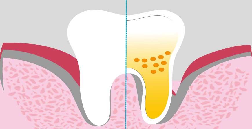 trattamenti-parodontali-evitano-perdita-denti