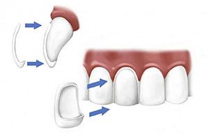 Applicazione delle faccette dentali