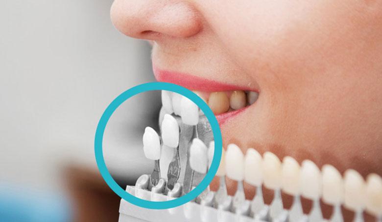 Estetica e Cosmetica Dentale al Vomero