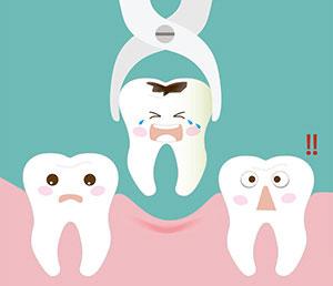 Estrazione anticipata di un dente da latte