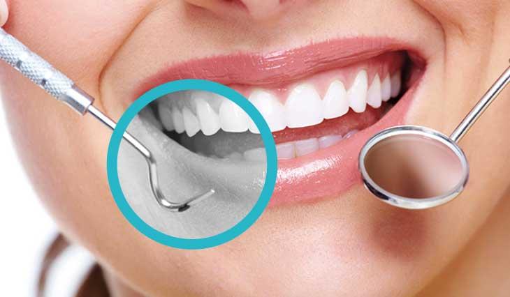 Igiene e profilassi dentale al Vomero