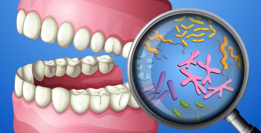 probiotici-e-salute-delle-gengive