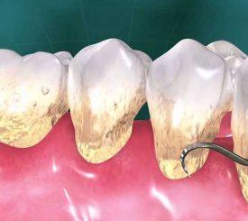 rimuovere-tartaro-puo-indebolire-denti