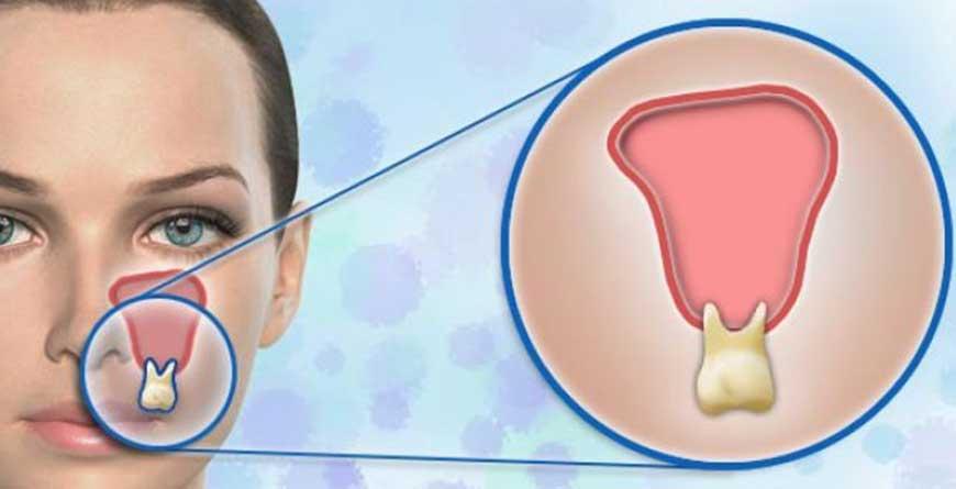 sinusite-e-problemi-dei-denti