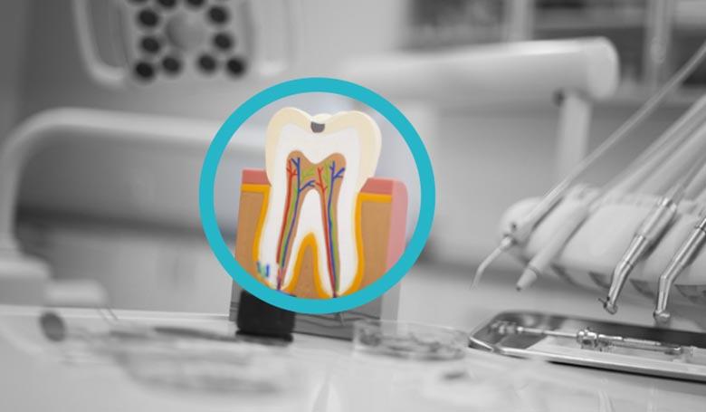 Endodonzia al Vomero