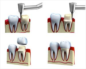 Fasi dell'incapsulamento dentale