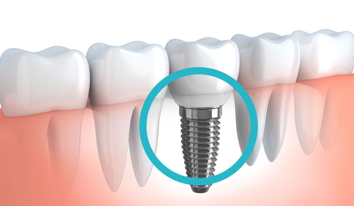 Impianti dentali al Vomero