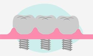 Implantologia in protesi fissa di uno o piu denti