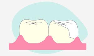 Intarsio dentale composito