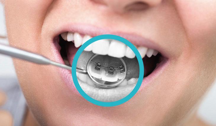 Ortodonzia al Vomero