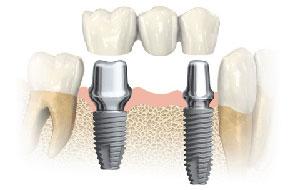 Ponte dentale su impianti