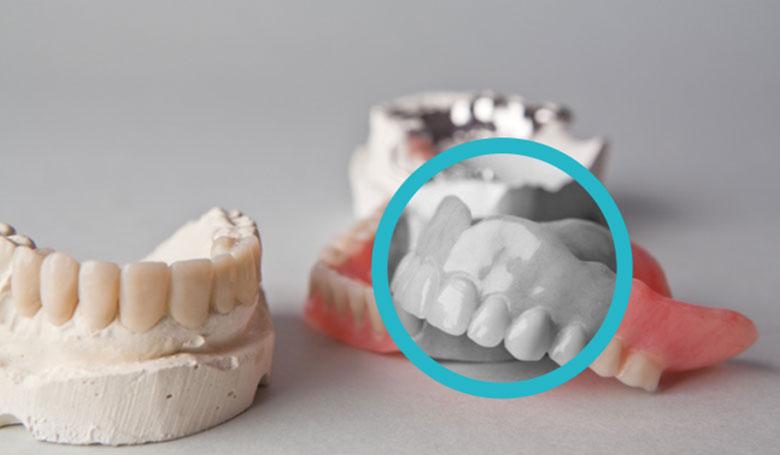 Protesi dentarie al Vomero