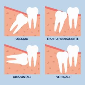 Tipologie di disontodiasi, mal-posizionamento del dente del giudizio.