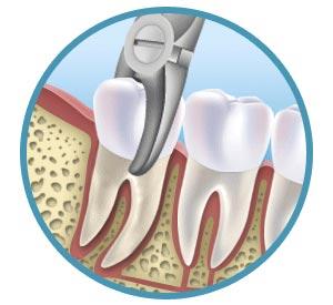 L'estrazione (o avulsione) dentale