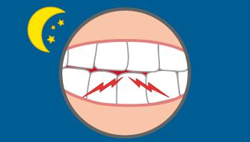 Spesso, senza accorgercene, digrigniamo i denti, soprattutto di notte.