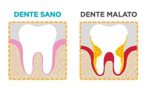 dentista vomero parodontite dente sano dente malato