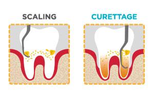 Dentista Vomero parodontite scaling curettage