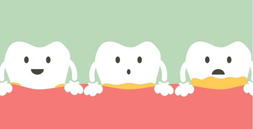 placca-primo-nemico-denti