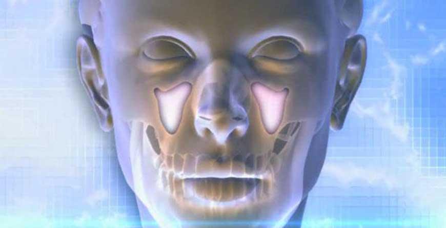sinusite-e-problemi-dentali