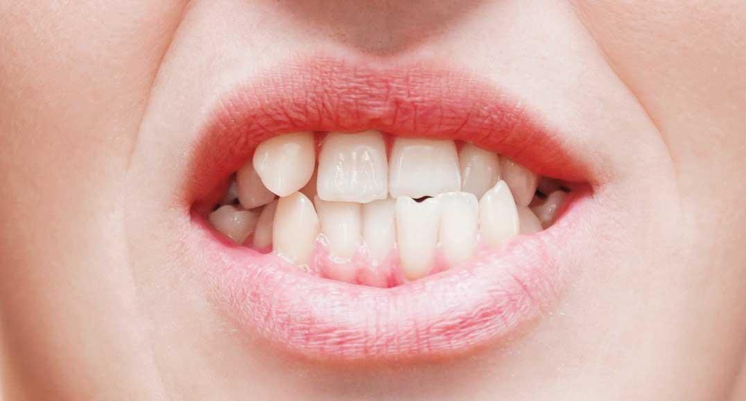 denti-malposizionati-michelangelo13-vomero