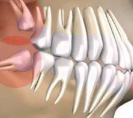 estrarre-dente-del-giudizio-michelangelo-13-vomero
