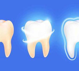 un-gel-per-ripristinare-lo-smalto-dentale