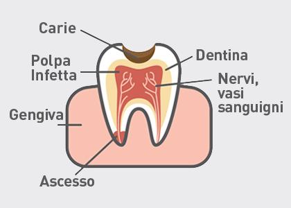 Polpa-dentale1