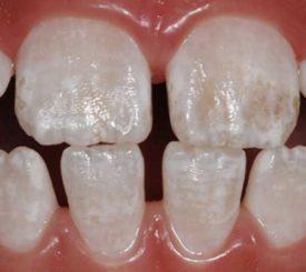 denti-e-fluoro-michelangelo-13