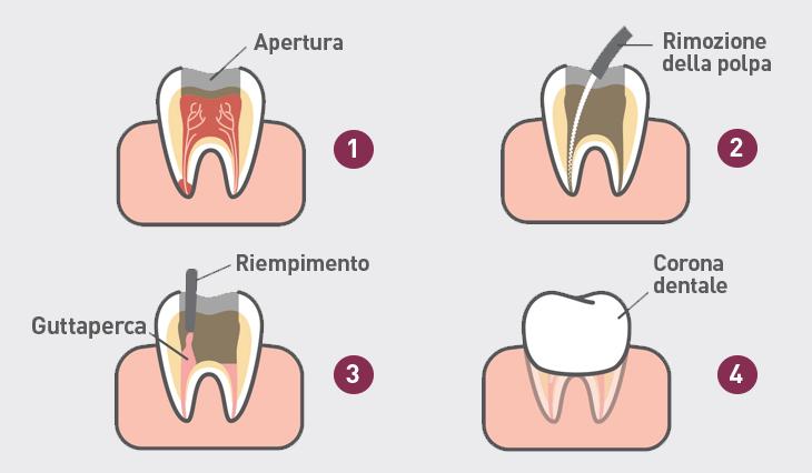 devitalizzazione-dente-vomero-napoli