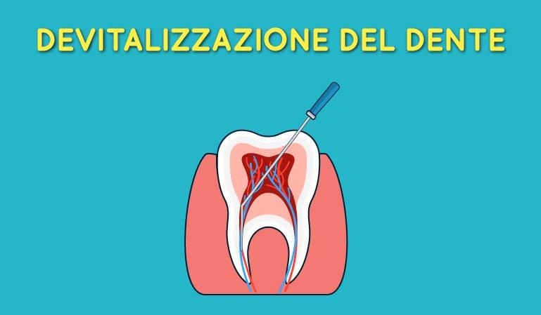 Devitalizzazione dei denti al Vomero