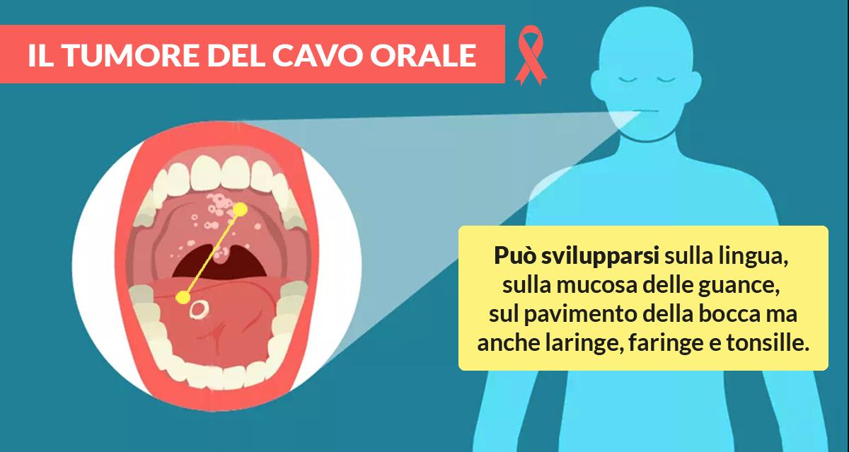 la-diagnosi-del-cancro-orale-dal-dentista